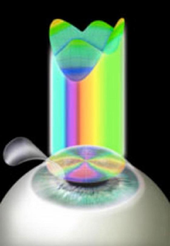LASIK - lasersko uklanjanje dioptrije