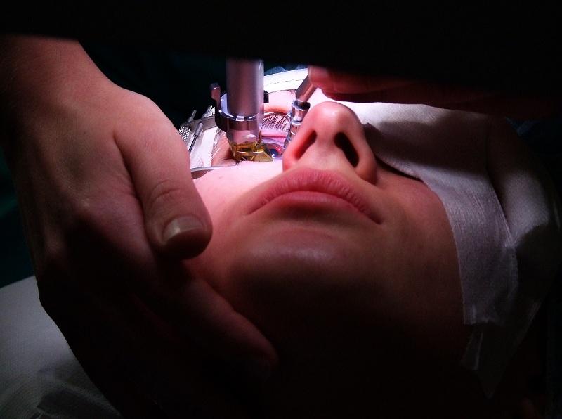 Lasersko uklanjanje dioptrije - operacija