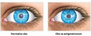 šta je astigmatizam i kako se leči